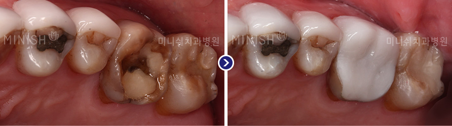 https://cdn.minishteeth.com/wp-content/uploads/2021/09/20135602/minish-types-molar-3.png